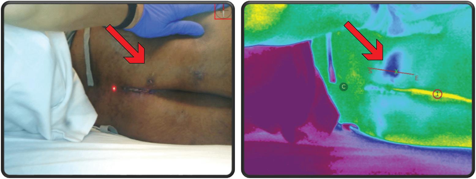 Ischemic-Buttock-Dark-Skin